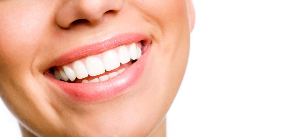 implant-dentaire-Tunisie-1.jpg