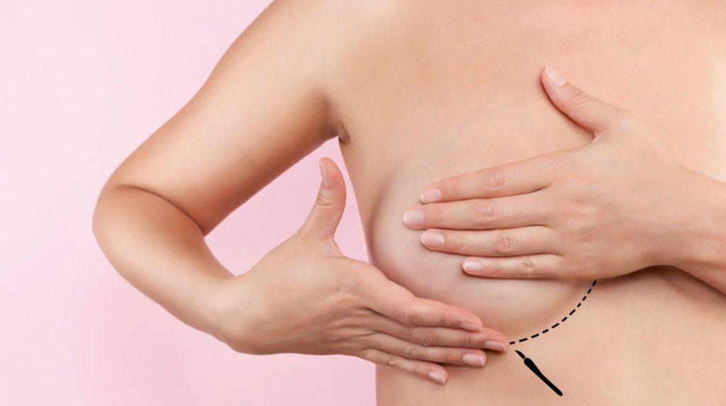 chirurgie-mammaire-tunisie-1024x572.jpg