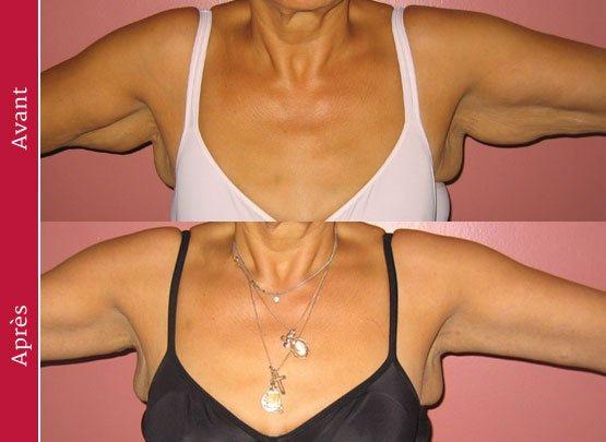 avant-apres-lifting-bras