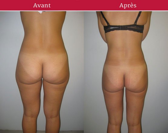 lifting-cuisses-photo-avant-apres