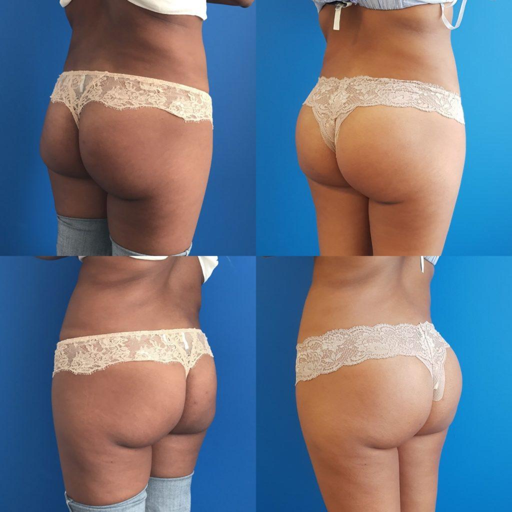 augmentation des fesses par implants?