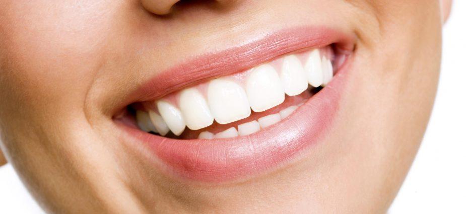 Les-facettes-dentaires-en-Tunisie.jpg