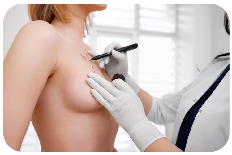 augmentation-mammaire-par-implants
