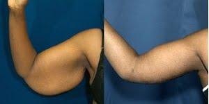 chirurgie reparatrice bras