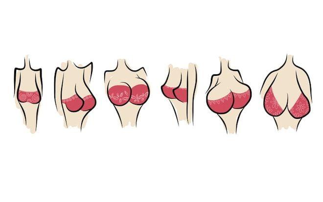 Techniques d'augmentation mammaire