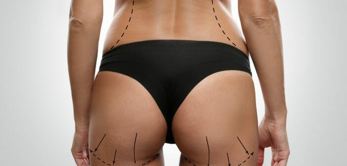 la-liposuccion-est-elle-efficace-contre-la-cellulite.jpg