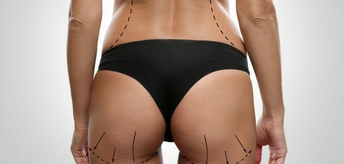la-liposuccion-est-elle-efficace-contre-la-cellulite.jpg
