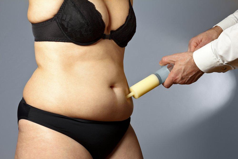 La liposuccion est-elle une alternative au régime ?