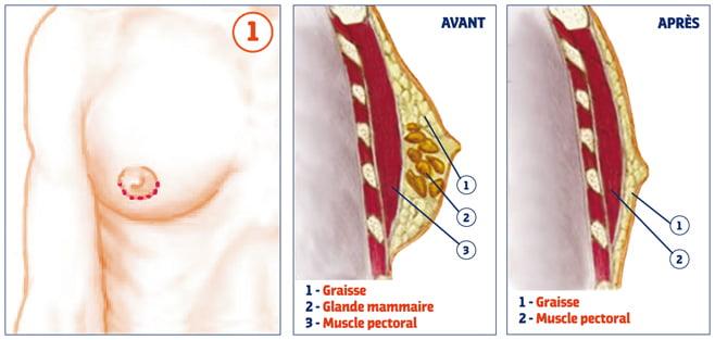 gynécomastie-chirurgie-poitrine