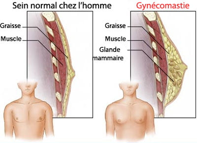 gynecomastie-hommes