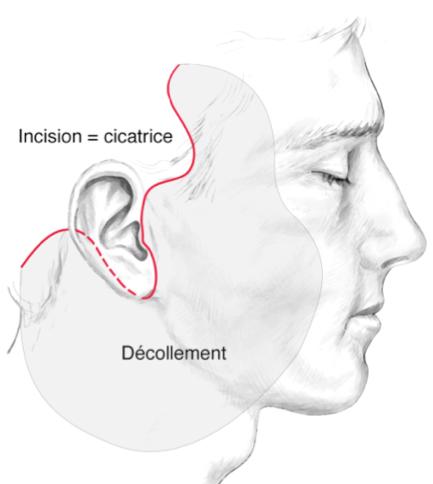 lifting facial incisions