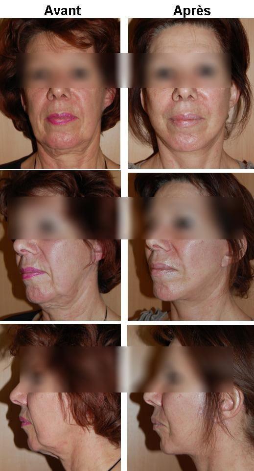 lifting-visage
