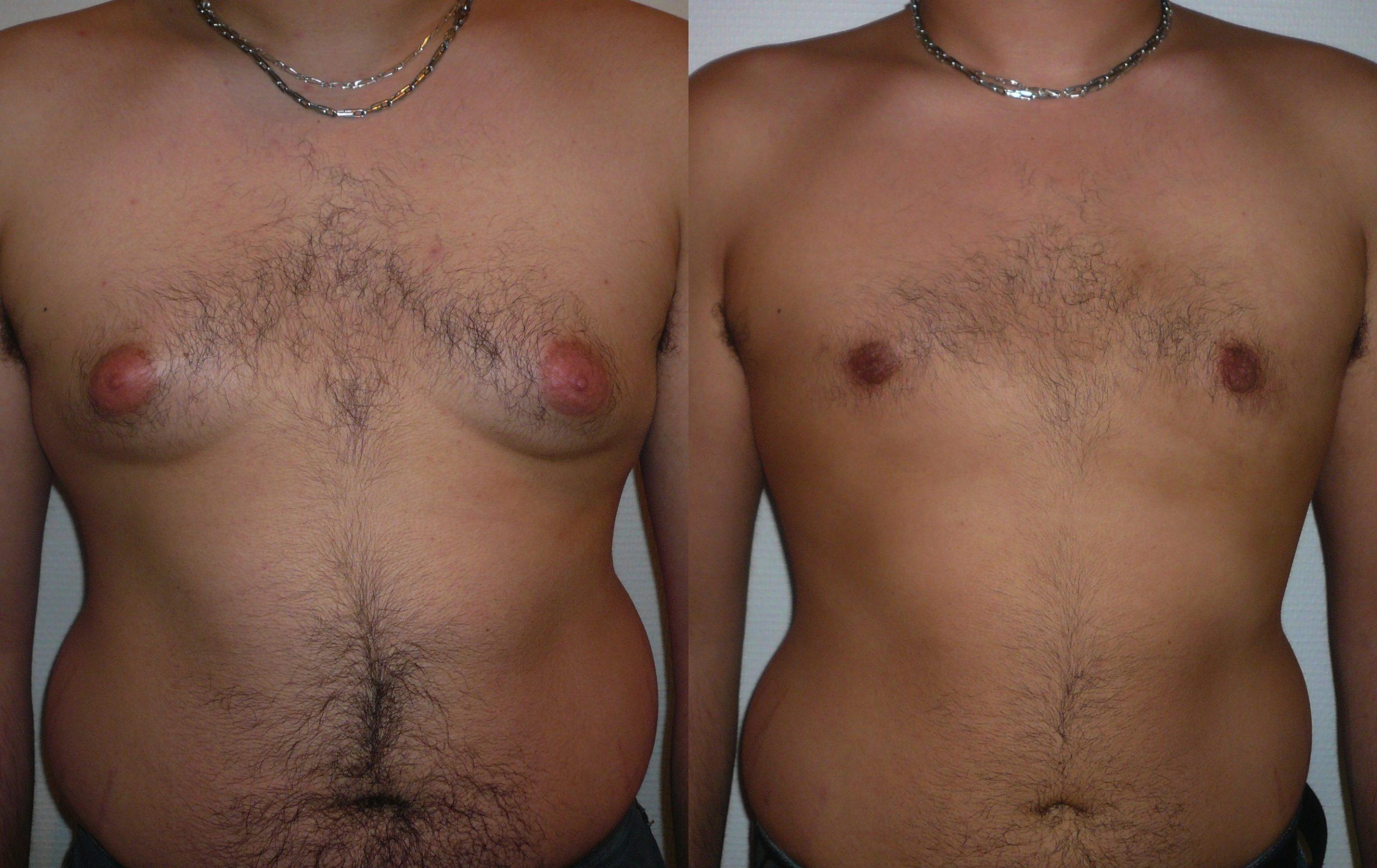 traitement-hypertrophie-mammaire